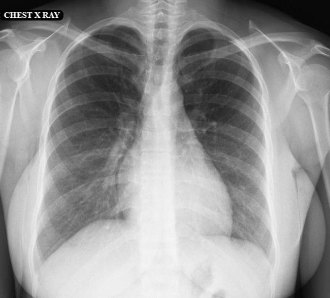 胸郭と腹部のCTスキャン