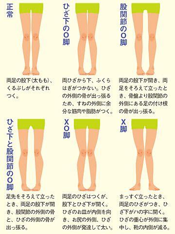 お子さんの足の形はどの絵に近い? 「O脚、