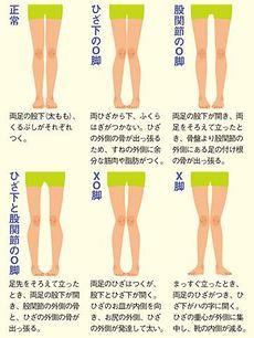 X脚 O脚の子を救う 歩き方 立ち方 President Online プレジデントオンライン