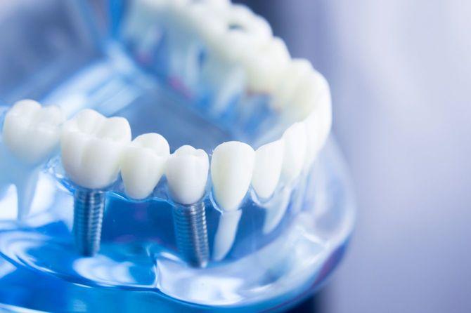 歯科歯歯科学生の歯や根、歯肉、歯周病、虫歯、プラークを示す教育モデルを学習します。