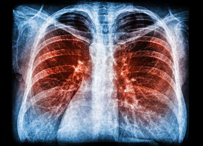 肺炎のX線画像