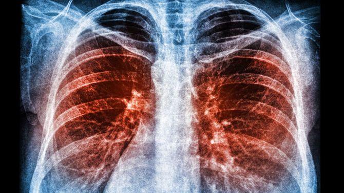 肺炎肺感染症のX線スキャン