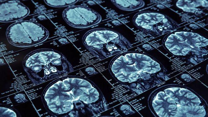 脳のX線撮影