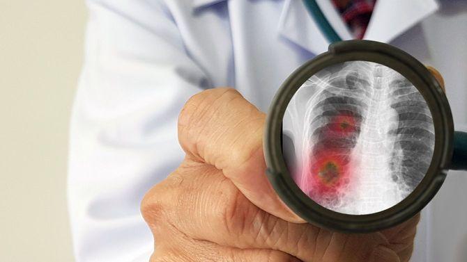医師の持つ聴診器に肺の炎症部分が映っている