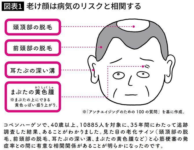 老け顔は病気のリスクと相関する