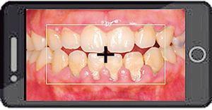 歯っぴーが提供するアプリの使用イメージ。