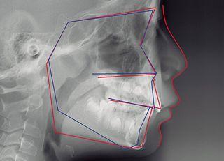 なぜ街の歯医者は「矯正」を勧めるのか