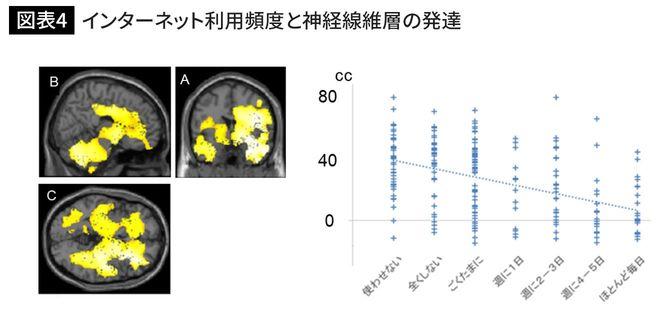 インターネット利用頻度と神経線維層の発達