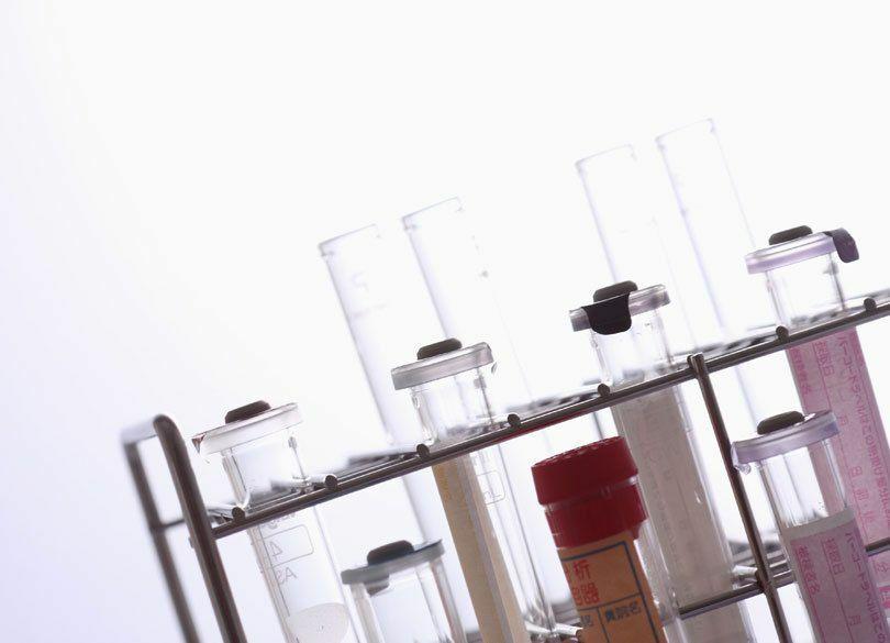 最高益続出! 日本の総合化学企業の中で抜きんでるのは?
