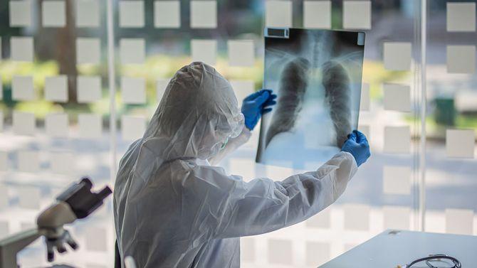 X線写真をチェックする医師