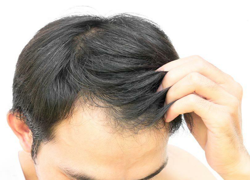 ヤフーが乗り出す毛髪診断ビジネスの中身 がんの予兆が5分で推測可能に?