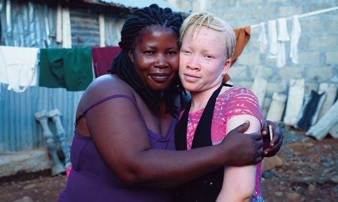アフリカ・シエラレオネに住む、アルビニズムのサロミ(右)と母のアリス