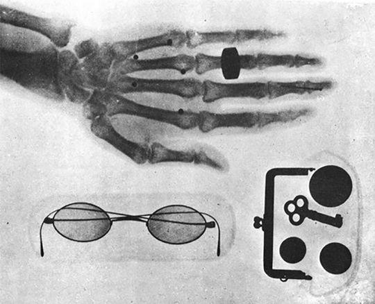 島津源蔵は日本で最初にレントゲン撮影を成功させた