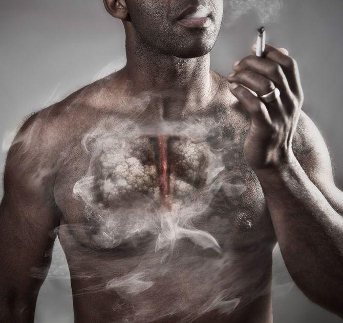 喫煙者の肺のイメージ